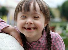 Down Sendromu nedir, Down Sendromu nasıl teşhis edilir, Down Sendromu olan çocukların gelişimi ve doğum önce Down Sendromu için neler yapılmalı ?