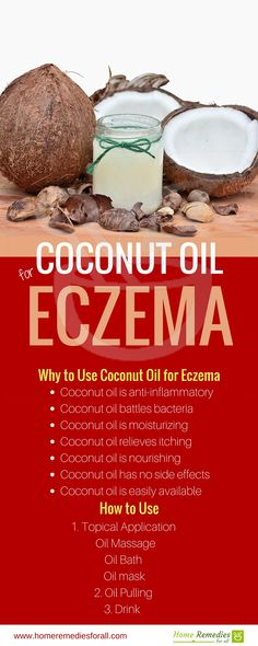 Use coconut oil for eczema. It is an excellent home remedy getting relief. Use coconut oil for eczema. It is an excellent home remedy getting relief. Related posts: How To Make and Apply Egg and Coconut oil Hair Mask Home Remedy Coconut Oil Face Mask Coconut Oil For Eczema, Oils For Eczema, Coconut Oil Lotion, Coconut Oil Uses, Benefits Of Coconut Oil, Oils For Skin, Home Remedies For Eczema, Natural Remedies, Deutsch