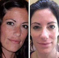 Katie has used our REVERSE line and our Macro Exfolilator for just 3 months! Amazing! Message me if you want to get rid your sun damage and brown spots!