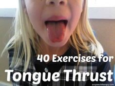 40 Exercises for Tongue Thrust Myofunctonal Disorder.seems like I currently have an unusually high number of kiddos on caseload with tongue thrust. Speech Language Therapy, Speech Language Pathology, Speech And Language, Oral Motor Activities, Speech Therapy Activities, Learning Activities, Kids Learning, Articulation Therapy, Articulation Activities
