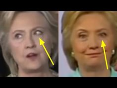 BREAKING: DR. TED NOEL REVEALS HILLARY'S MAJOR NEW PARKINSON'S HEALTH WARNINGS THAT COULD END HER - YouTube