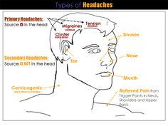 A slide show from Dr. Oz on different types of headaches with an ...