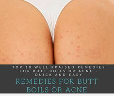 Top 10 Well Praised Remedies For Butt Boils Or Acne - Quick and Easy Back Acne Remedies, Scar Remedies, Skin Care Remedies, Natural Remedies, Pimples On Buttocks, Remover Manchas, Acne Help, How To Get Rid Of Pimples, Body Acne