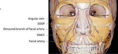 Figure 5.6 from The Art and Science of Filler Injection: Based on Clinical Anatomy and the Pinch Technique   Semantic Scholar Cosmetic Fillers, Facial Fillers, Plastic And Reconstructive Surgery, Plastic Surgery, Filler Injection, Surgery Journal, Hyaluronic Acid Fillers, Aesthetic Dermatology, Neck Surgery