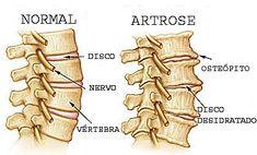 A adoção de posturas erradas leva, ao longo do tempo, a lesões das articulações vertebrais.