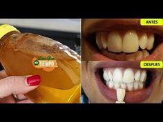 Los dentistas no quieren que esto salga a la luz Pues es el método más rápido y seguro para blanque - YouTube