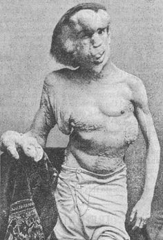 From his discovery in a Victorian Freak show, The Elephant Man Joseph Merrick sparked curiosity and brought freaks into the forefront of enlightened scientific study. Joseph Merrick, John Merrick, Elephant Man, Tv Movie, Human Oddities, The Blues Brothers, Zombies, David Lynch, Medical History