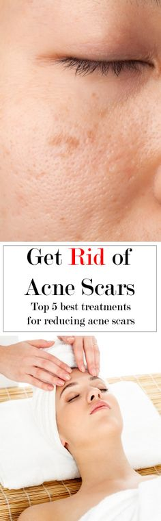 Get Rid of Acne Scars - Top 5 Best treatments for reducing acne scars. http://www.beautystarlet.com/top-5-best-ways-to-treat-acne-scars/