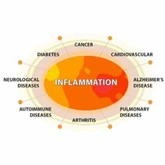 Inflammation is associated with the development of cancer.