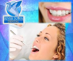 To ensure a good oral care, you should visit your #dentist at least twice a year to have a full hygiene treatment performed. Also at these appointments, a comprehensive exam is taken with x-rays to help detect & prevent future dental treatments from occurring. Schedule your next appointment: (608) 788-0030 rivertowndentalonline.com #HealthyTeeth