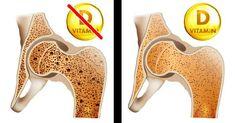 8 jel, hogy a testednek sürgősen D-vitaminra van szüksége | Kuffer