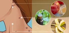 Body Treatments, Plastic Cutting Board, Watermelon, Beauty Hacks, Beauty Tips, Health Fitness, Healing, Herbs, Blog