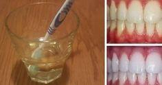 In questo articolo descriveremo un semplice ed efficace metodo per sbiancare i denti. L'aceto di [Leggi Tutto...]