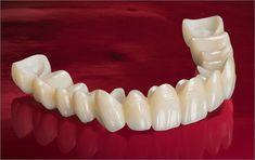 Zirconia Crown - BruxZir Solid Zirconia Crowns and Bridges. http://www.glidewelldental.com/dentist/services/all-ceramics-bruxzir.aspx #dental product #dentist #dentistry