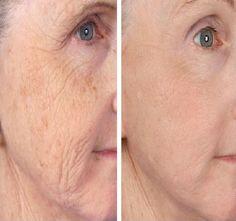 Youth Power Gold Peel-Off Mask – Dunpie Skin Mask, Face Skin, Crepy Skin, Vampire Facial, Piel Natural, Peel Off Mask, Anti Aging Treatments, Mascaras, Makeup