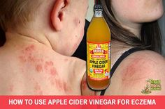 Eczema is a medical condition which causes skin irritation or inflammation. Also known as Atopic Dermatitis, or Atopic Eczema, it renders the person suffering from this disease to get itchy, red and inflamed rashes over their wrists, knees, face or...