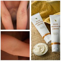 Propolis cream. Good for skin conditions