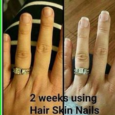 It Works Hair Skin & Nails You've seen our hair results and our skin results and now look at the nails results blessedhdz.myitworks.com