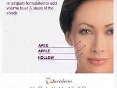 JUVÉDERM VOLUMA is here! » Evansville IN | Plastic Cosmetic Reconstructive Surgeon