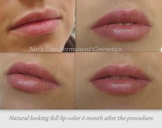 View before after photo examples of our Lips Permanent Makeup in Toronto. Our permanent makeup gallery is updated almost daily!
