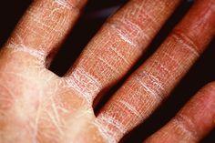 Nummular Eczema, Eczema Symptoms, Eczema Remedies, What Is A Dermatologist, Types Of Skin Rashes, Natural Skin Moisturizer, Best Herbal Tea, Skin So Soft, Cracked Hands