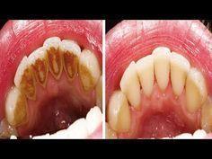 Wie man Zahnbelag entfernt ohne zum Zahnarzt gehen zu müssen! - YouTube
