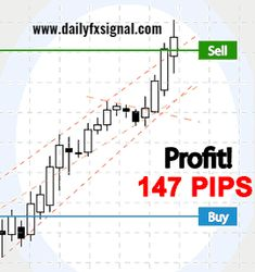 Enjoy live forex trading by making right decision and achieving higher returns from the largest financial market. Companies like Daily Fx Signal provide best #liveprofitforexsignals along with free analysis, account management solution, EA software and other more attractive services. For more details, logon to www.dailyfxsignal.com!