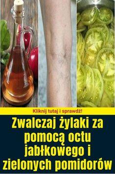 Zwalczaj żylaki za pomocą octu jabłkowego i zielonych pomidorów Pickles, Sprouts, Cucumber, Cabbage, Vegetables, Food, Health, Essen, Cabbages