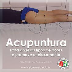 Acupuntura auxilia esportistas no tratamento das dores!! Seja um acupunturista e atua nos esportes! Entre em contato em nossos canais,ligue: 0xx11 2662-1713 / 0xx11 97504-9170(pelo whatsapp) ou através do e-mail: ebramec@ebramec.com.br #ACUPUNTURA #DORES #TRATAMENTO #ESPORTES #ESPORTISTAS #TURMASABERTAS #TERAPIA #AGOSTO #MEDICINACHINESA #FACULDADEEBRAMEC