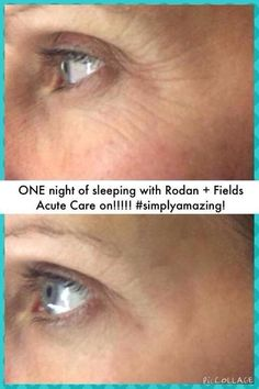 Rodan and Fields Acute Care! Fill a wrinkle overnight with a patch not a needle! Results last up to 3 months. http://lbates1.myrandf.com  lindabates04@yahoo.com