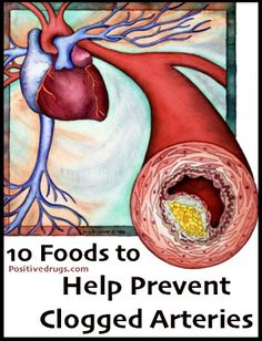 10 Foods to Help Prevent Clogged Arteries