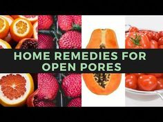 Here are some of the best remedies for you to try, in order to get rid of open pores quickly. #GetRidOfPores Acne Treatment, Skin Treatments, Skin Tips, Skin Care Tips, Open Pores On Face, Homemade Coconut Oil, Essential Oils For Face, Younger Skin, How To Get Rid Of Acne