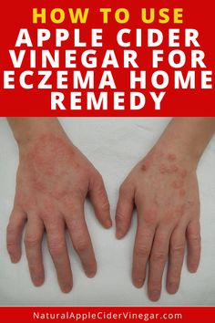 This apple cider vinegar for eczema remedy helps you get rid of eczema. This article contains a natural remedy using apple cider vinegar to help you get rid of eczema. Use this remedy to help you get rid of eczema. Check out this great recipe to naturally get rid of eczema without using harmful ingredients that are bad for you. #applecidervinegar #eczemaremedy #natrualcare #homeremedy Home Remedies For Eczema, Natural Home Remedies, Natural Treatments, Get Rid Of Eczema, Raw Apple Cider Vinegar, Natural Beauty Tips, Health And Wellness, Recipe