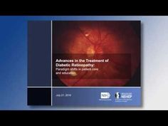 Webinar: Advances in the treatment of diabetic retinopathy - YouTube