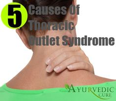 Top 5 Thoracic Outlet Syndrome Causes
