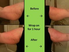Our wraps work on any part of your body from the neck down.