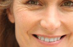 Prévenez l'apparition prématurée des rides sur le visage - Améliore ta Santé