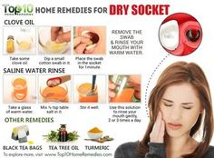 Home Remedies for Dry Socket: Natural Pain Relief Tooth Extraction Aftercare, Tooth Extraction Healing, Dental Extraction, Natural Headache Remedies, Natural Pain Relief, Wisdom Teeth Funny, Wisdom Teeth Food, Wisdom Teeth Removal, Remedies For Tooth Ache