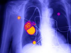 I depend on a pacemaker to stay alive. And I'm a security researcher. I want hackers to target my device to make me, and everyone who depends on medical implants, safer.