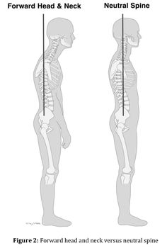 Muscle imbalances occur when you have overdeveloped & tight muscles in one area of your body while the opposing muscles are weak and stretched out of their normal position. These imbalances can happen anywhere on the body and often develop as the result of the routine things you do. Everyone has muscle imbalances to some degree. No one is perfect. And even if you did manage to achieve perfection, you could not stay there for long. http://www.losethebackpain.com/trea…/muscle-balance-therapy/