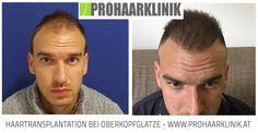 Haartransplantation Vorher Nachher - Ergebnisse