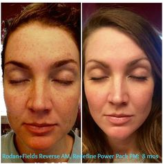 "Ready to put your BEST face forward in 2016? Check out Katy's GORGEOUS results after using Rodan + Fields Award Winning skincare! Her skin is Absolutely Flawless now! Katy has shared her routine....""My 8 month results!!! I've been using Rodan + Fields REVERSE in the AM, REDEFINE in the PM with the AMP MD Roller 6 nights a week and Macro-E once a week."" ~ Katy Coe  https://iarman.myrandf.com/Pages/OurProducts/GetAdvice/SolutionsTool"