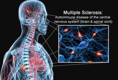 multiple sclerosis s brain spinal cord nerves