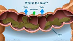 What is a colonoscopy and how do I prepare for it? Colon Cleansing Foods, Colon Cancer, Helpful Hints, Improve Yourself, Learning, Factors, Water, Anatomy, Purpose