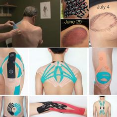 What is Kintape or Kinesiology tape used for?