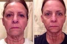 Tightening Your Face Via Face Yoga Gymnastics To Reap A Natural Facelift