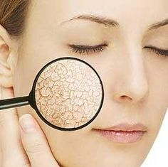 5 Ways to Get Rid of Dry Flaky Skin on Face – Remove Facial Dryness