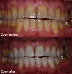 I think cosmetic dentistry is really amazing, because even if you don't do a good job of maintaining your teeth, you can still have a nice look to your teeth. I think a lot of people get their confidence from how their teeth look. I think it's great that they can have their confidence restored through getting cosmetic dentistry work done.
