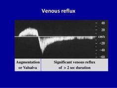 Doppler ultrasound in deep vein thrombosisSamir Haffar M.Assistant Professor of internal medicine Pregnancy Gender Reveal, Pregnancy Photos, Ultrasound School, Cardiac Sonography, Vascular Ultrasound, Carotid Artery, Internal Medicine, Radiology