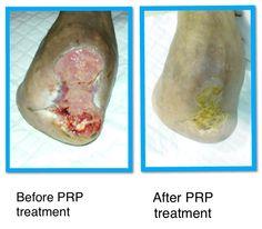 Dr. Fares Boufakhreddine. Platelet Rich Plasma treatment of diabetic ulcers.